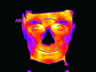GESICHTSTHERMOGRAFIE 2  (C) MEDICAL CONSULTING GROUP